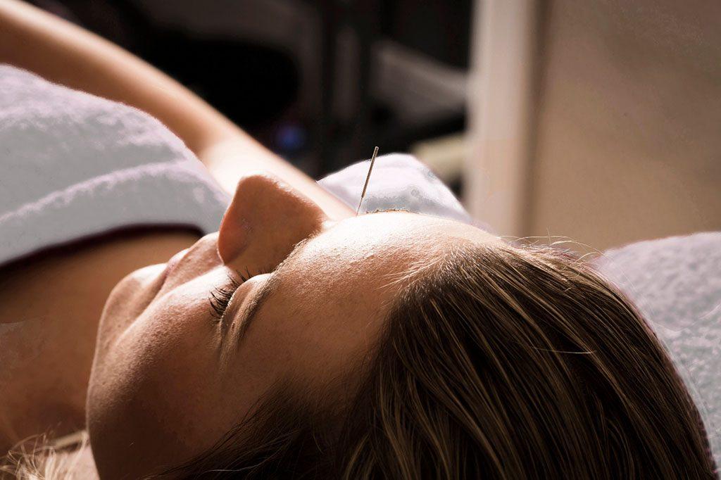 fusion accupuncture